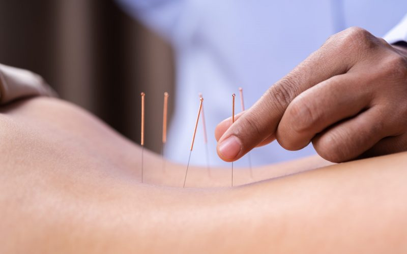 close up woman undergoing acupuncture treatment on back